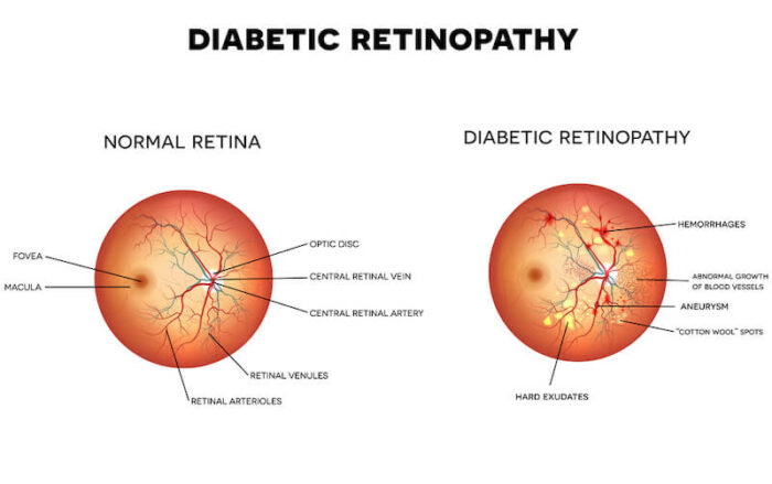 Diabetic Retinopathy diagram